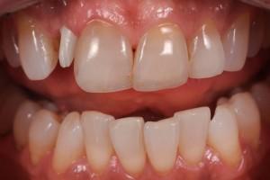 Dental Lab, Zirconia Abutment