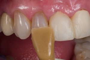 Dental Lab, Implant Crowns