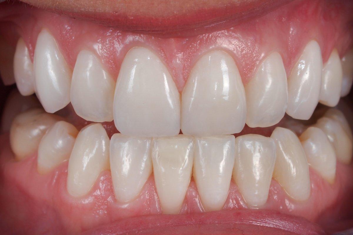 виниры для зубов -купить в украине