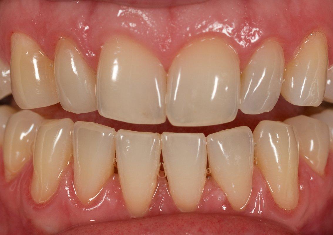 Case 8 Feldspathic Veneers Teeth 5 And 7 In House
