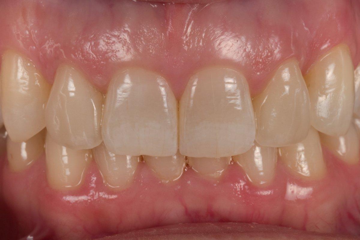 Case 7 Teeth 7 And 10 Feldspathic Veneers In House