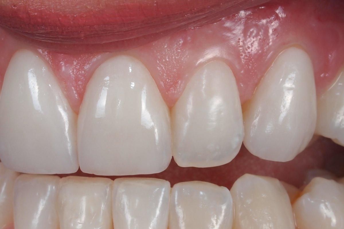 Case 14 Feldspathic Porcelain Veneers For Teeth 6 8 9