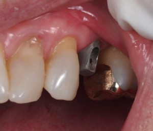 Screw Retained Implant Crown