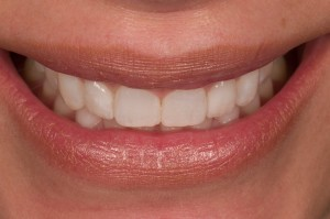 Dental Lab, Porcelain Veneers