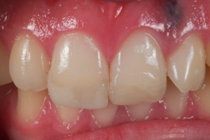 Dental Lab, Porcelain Veneers