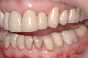 Dental Lab, Zirconia Crowns