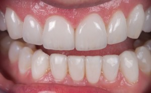 Dental Lab, Porcelain Crowns