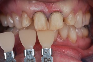 Dental Lab, e.max veneers