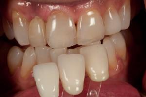 Dental Lab, Zirconia Crowns