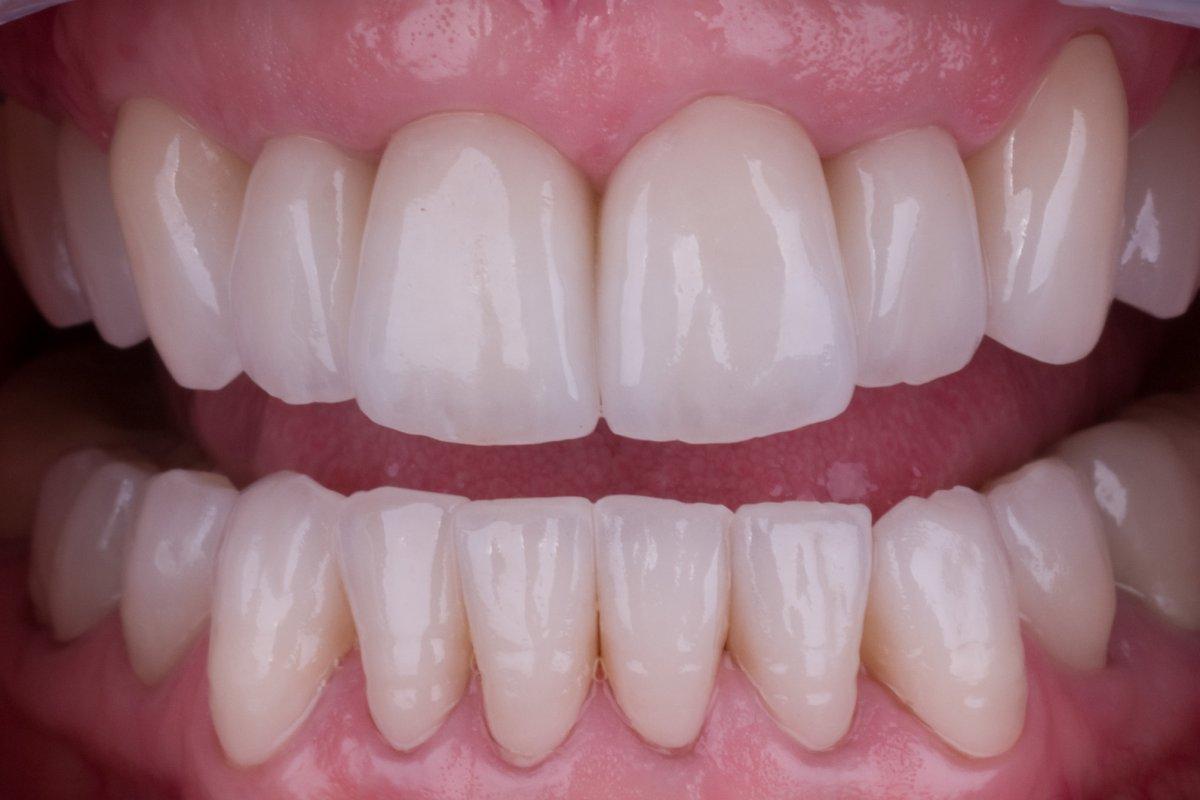Case 3, Comprehensive Rehabilitation with Zirconia Crowns ...